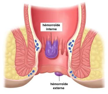 hemorroide interne et externe