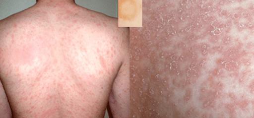 Pityriasis rosé affection dermatologique